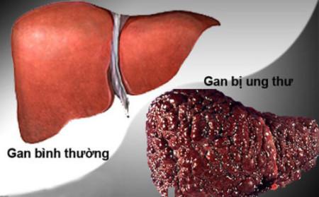 Nấm lim xanh chữa ung thư gan
