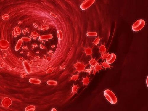 Hình ảnh bệnh ung thư máu